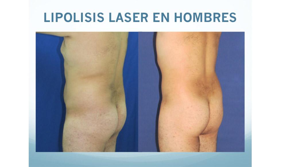 https://dra-vanegas.com/wp-content/uploads/lipolisis-laser-hombres.jpg
