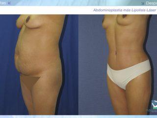Abdominoplastia - Dermolipectomía