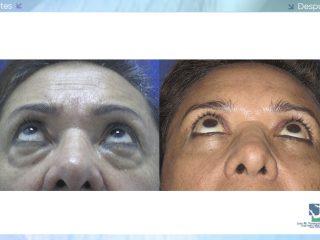 Blefaroplastia en Mujeres