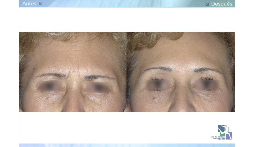 Toxina Botulínica – Botox®