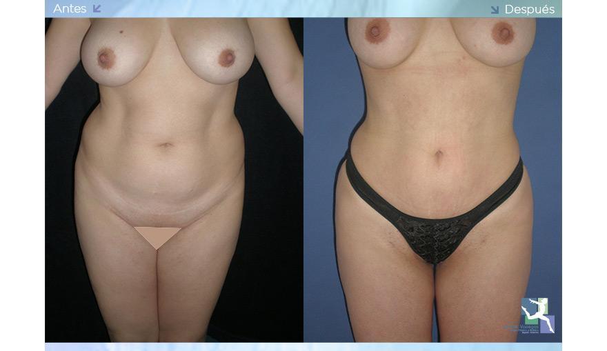 Liposucción con Láser - LaserLipolisis
