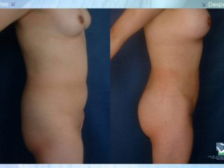 Liposucción - Lipoescultura