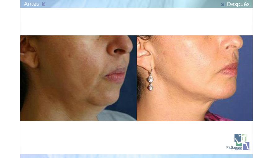 Implantes de Mentón y Malares