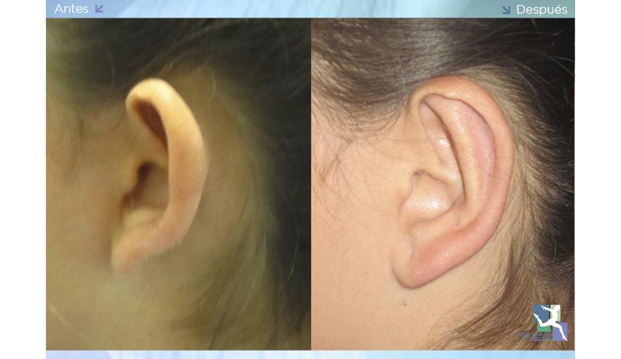 Otoplastia - Cirugía de las Orejas