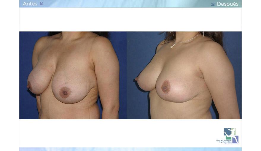Mamoplastia de Reducción