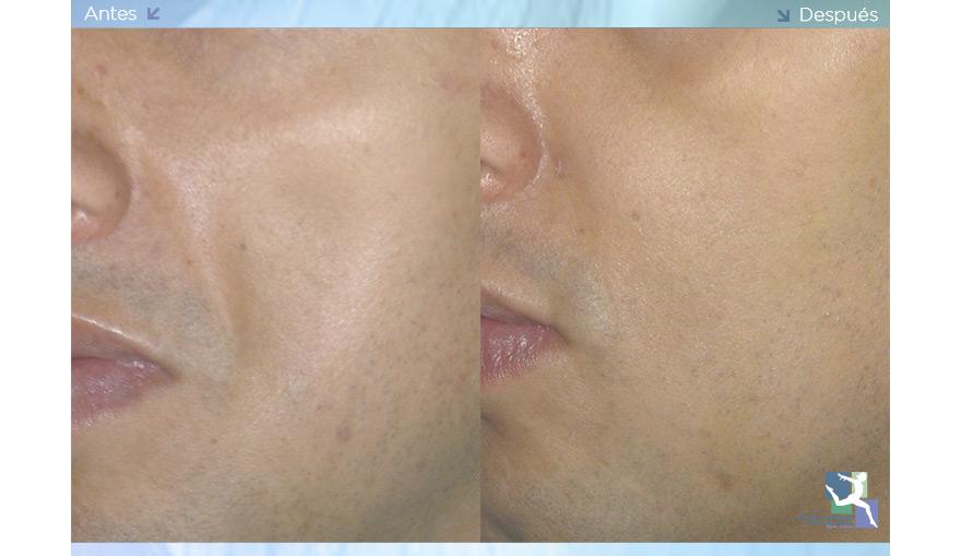 Lipoinyección Facial