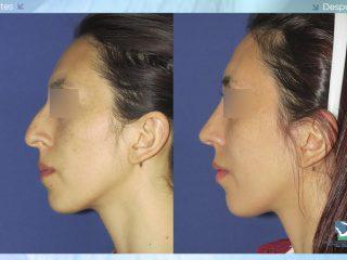 Rinoplastia – Cirugía de Nariz