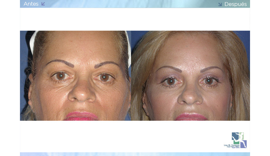 Cirugía de Cejas – Ascenso de Cejas