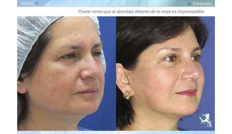 Ritidoplastia – Cirugía de Arrugas Faciales