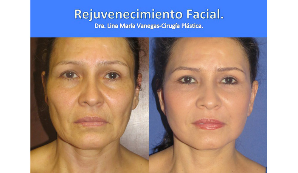 https://dra-vanegas.com/wp-content/uploads/rejuvenecimiento-facial.jpg